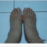 JYOGA樂活瑜珈-懷孕水腫的腳